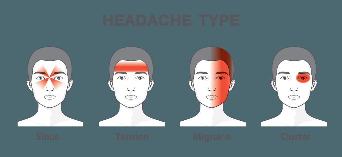 Cluster Headaches, Tension Headaches, Migraines, Sinus Headaches